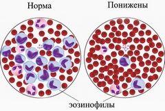 Аналіз крові на еозинофіли