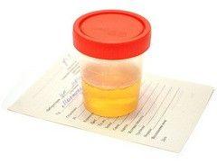Еритроцити в аналізі сечі
