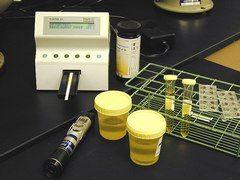Загальний аналіз сечі лейкоцити