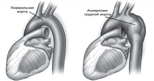 Частковий кальциноз стінок грудного відділу аорти