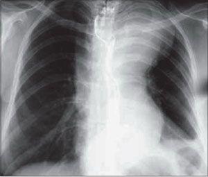 Аневризма аорти