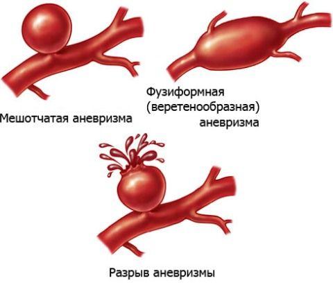 Аневризми ниркових артерій