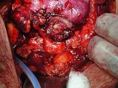 Лікування ангіоміоліпоми