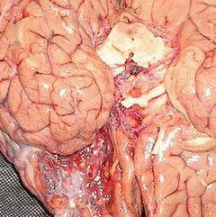 Арахноідальная кіста головного мозку
