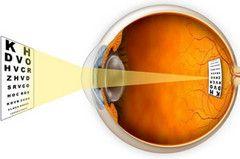 Астигматизм очей
