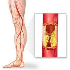 Лікування атеросклерозу судин кінцівок