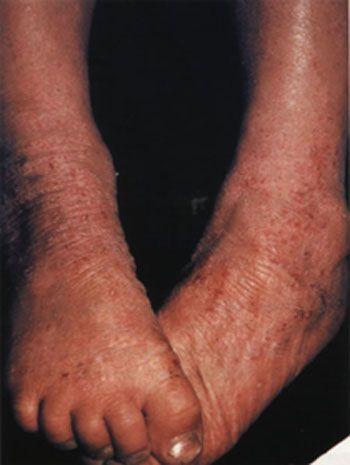 На фото: атопічний дерматит. Доросла форма симптоми