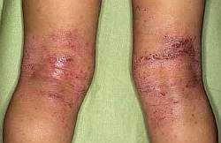 Симптоми атопічного дерматиту у дитини