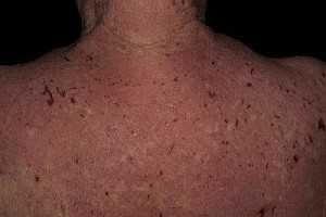 Атопічний дерматит на спині
