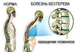 Хвороба Бехтерева