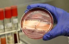 Лабораторна діагностика бруцельозу