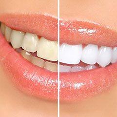Чим ми розплачуємося за відбілювання зубів