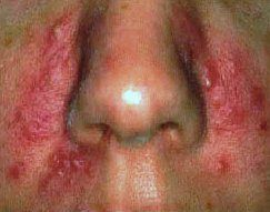 Симптоми демодекозу
