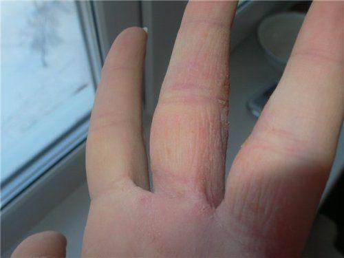 Симптоми дерматиту від носіння кільця
