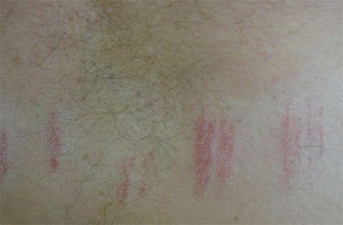 Симптоми контактного дерматиту від тертя одягу