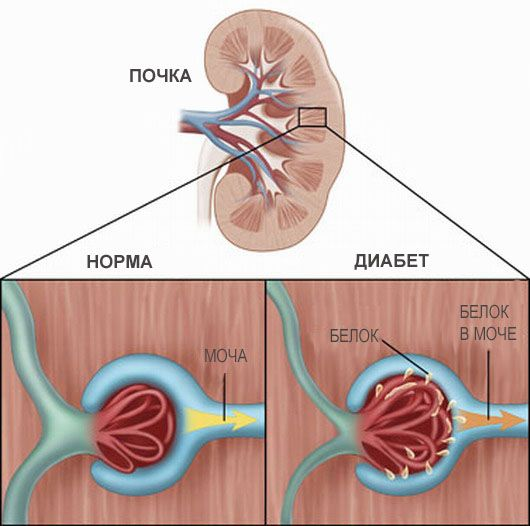 Поразка судин нирок при діабеті