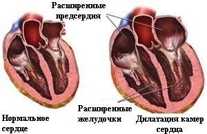 Дилатаційна кардіоміопатія