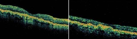 Друзи диска зорового нерва на ОКТ