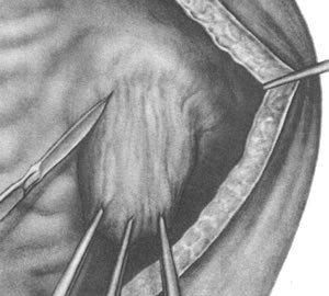 Дивертикул сечового міхура
