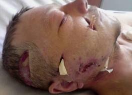 Хірургічне лікування флегмони
