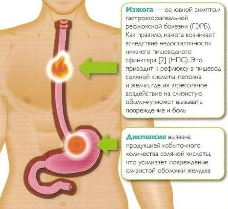 Гастроезофагеальна рефлюксна хвороба (ГЕРХ)