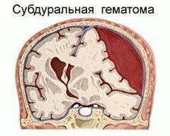 Субдуральна гематома