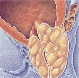 Гіпертрофія насінного горбика