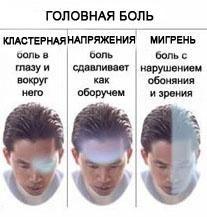 Головний біль напруги (ГБН)