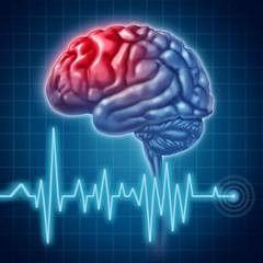 Судинні хвороби головного мозку