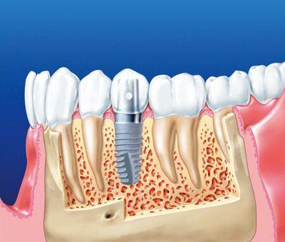 Вид імплантату в кістки нижньої щелепи