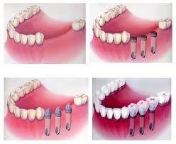 Протезування на імплантатах включеного бічного дефекту зубного ряду