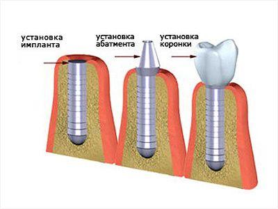 Етапи установки імплантату