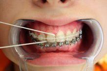 Використання суперфлоса для очищення проміжків між зубами