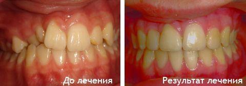 Фото виправлення прикусу брекетами до і після лікування