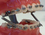 Брекети на вестибулярної поверхні зубів