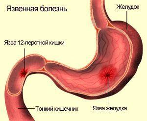 Виразка (виразкова хвороба) шлунка та дванадцятипалої кишки