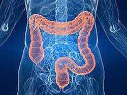 Виразковий коліт кишечника - симптоми, лікування