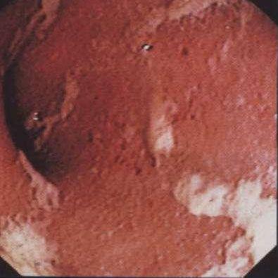 типова ендоскопічна картина виразкового коліту