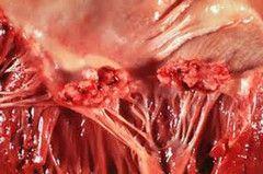 Поразки при ендокардиті