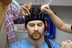 Лікування та діагностика епілепсії