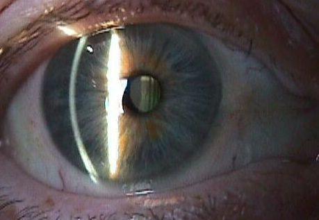 Початкова катаракта