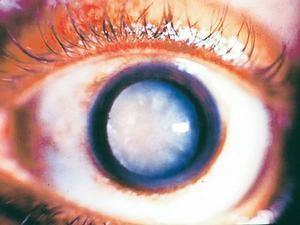 Зріла катаракта