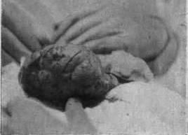 Кістаденома нирки