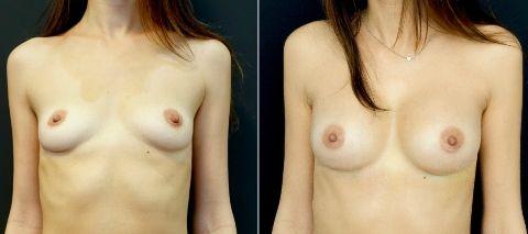Збільшення грудей