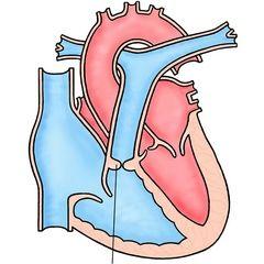 Стеноз легеневої артерії