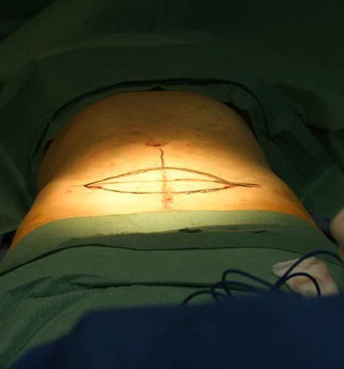 Фото при проведенні ліпосакції з абдомінопластика