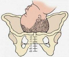 Лобкова кістка при вагітності