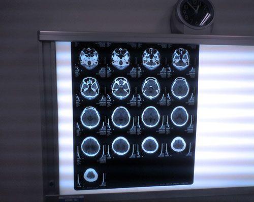 Магнітно-резонансна томографія (МРТ). Показання, протипоказання МРТ. як проводиться МРТ