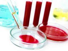 Сечовина в аналізі крові