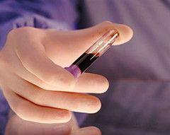 Підвищено моноцити в аналізі крові